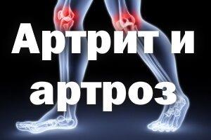 В чем разница между артритом и артрозом