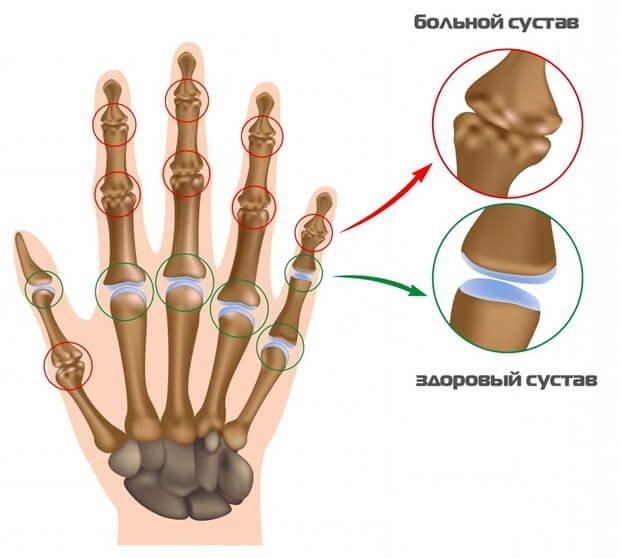 норма и патология при артрите