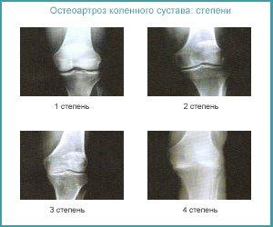 Стадии на рентгенограмме