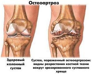 Чем лечить остеоартроз коленного сустава 2 степени