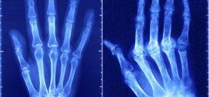 Ревматоидный артрит на снимке
