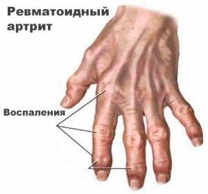 Воспаление пальчиков кисти