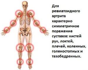 Симметрия поражения суставов