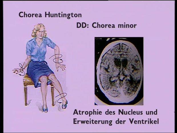 Атрофия ядер мозга