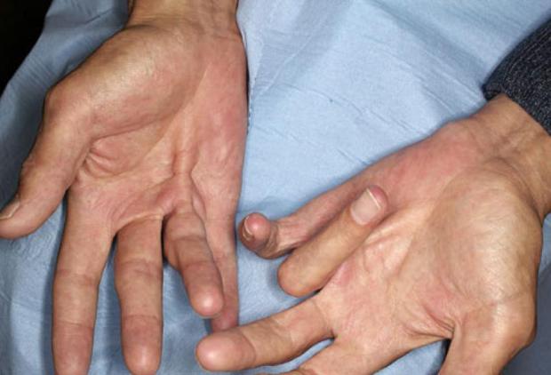Спазм пальцев