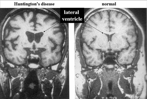 Боковые желудочки мозга