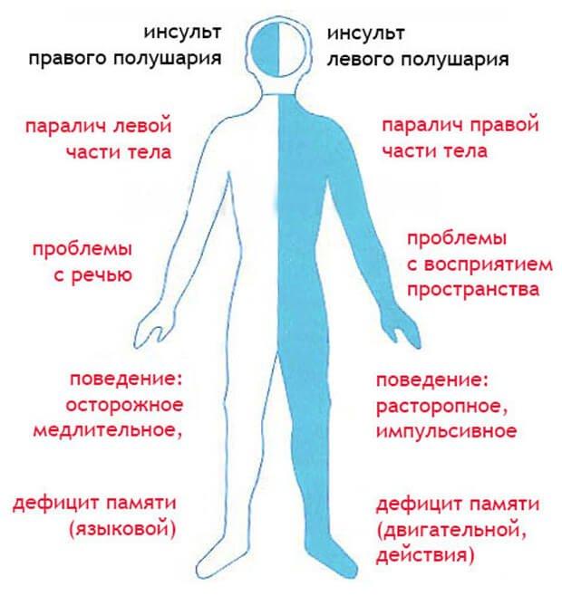 симптомы правостороннего и левостороннего инсульта