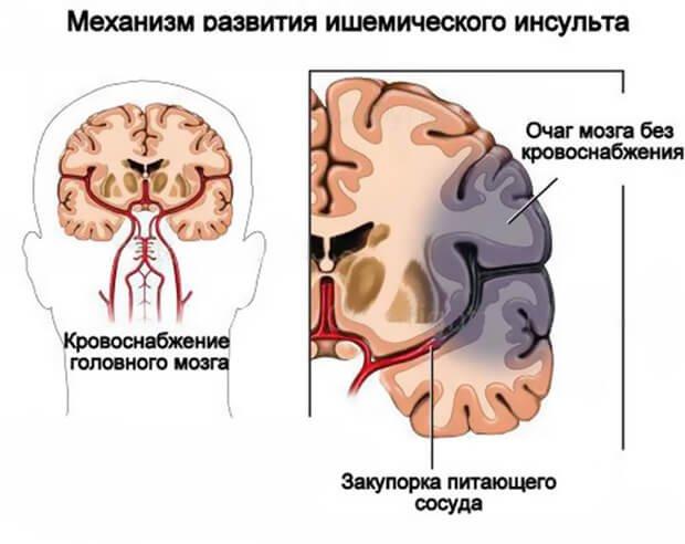Механизм развития инсульта