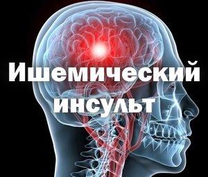 Последствия ишемического инсульта левой стороны