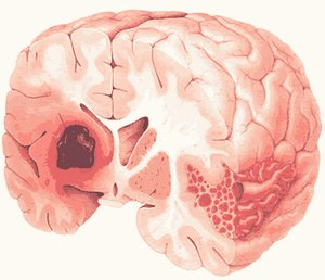 инсульт ствола мозга