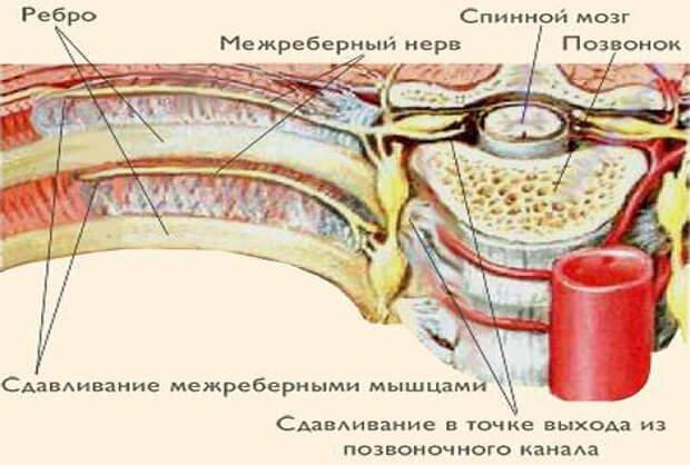 Сдавление нерва