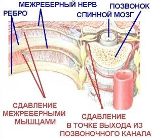 Сдавливание мышцами
