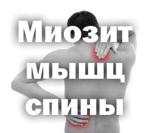 боли при Миозите мышц спины