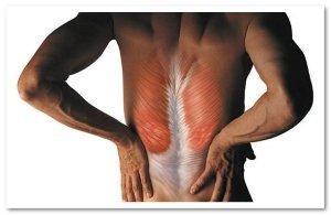 миозит спины