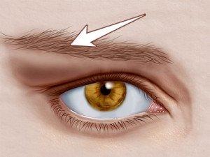 Глаз подвержен заболеванию