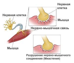 Разрушение нервно-мышечного соединения