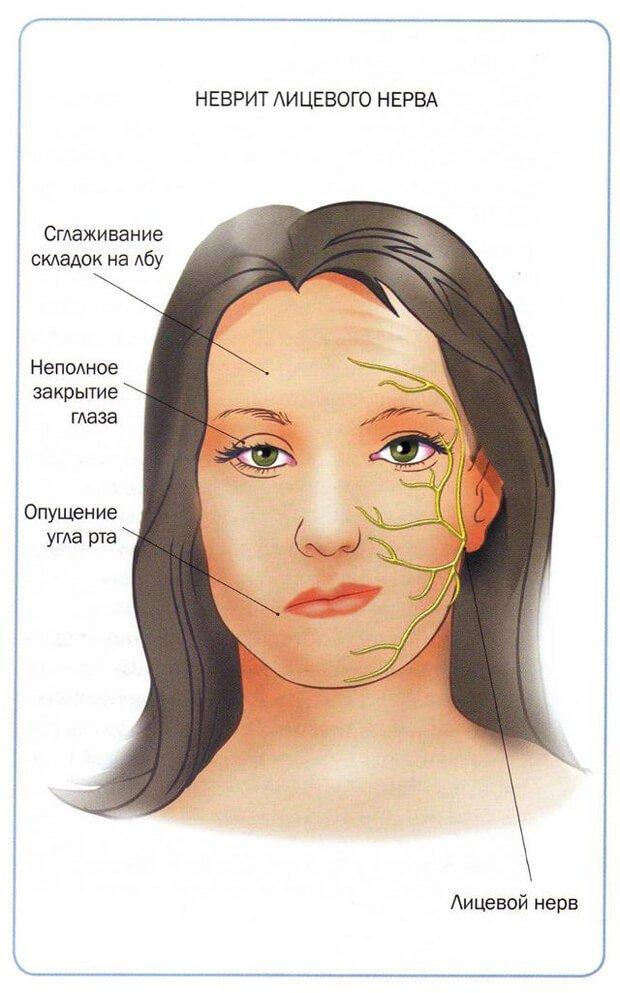 симптомы неврита