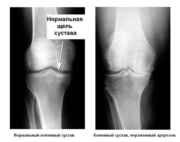 рентгенограмма при остеоартрозе
