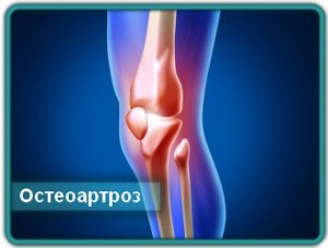 Поражение колена