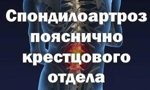 Лечение спондилоартроза пояснично-крестцового отдела позвоночника
