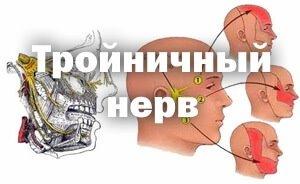 поражение тройничного нерва