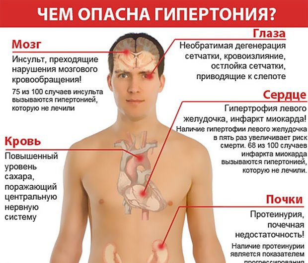 Вегетососудистая дистония по гипертоническому типу: симптомы и лечение