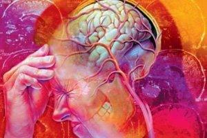 диагностика невралгии
