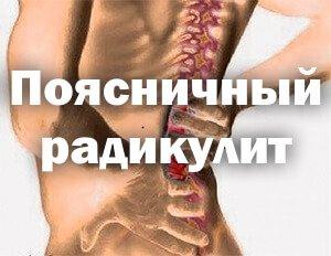 Радикулит поясничный симптомы лечение