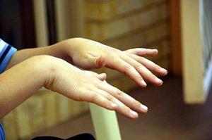 Кисти и пальцы