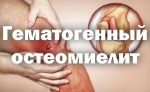 Острый и хронический гематогенный остеомиелит