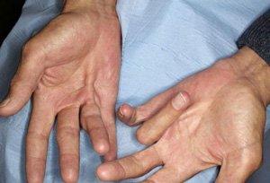 Согнутые пальцы рук