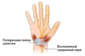 Воспаление срединного нерва