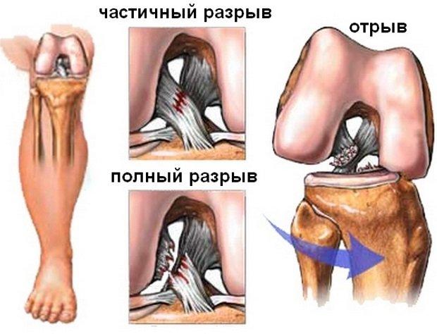 Травмы колена