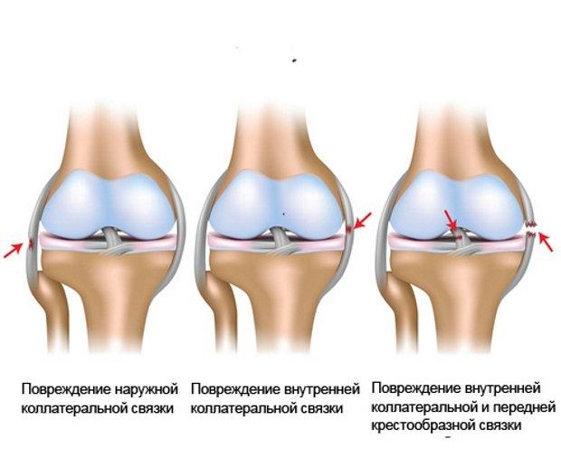 Виды повреждений связочного аппарата