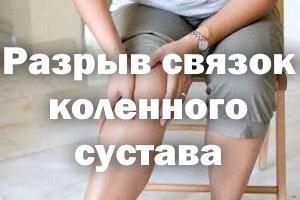 Держится за колено