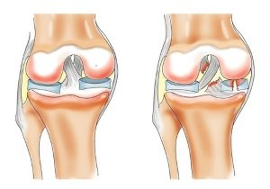 Надрыв связок коленного сустава