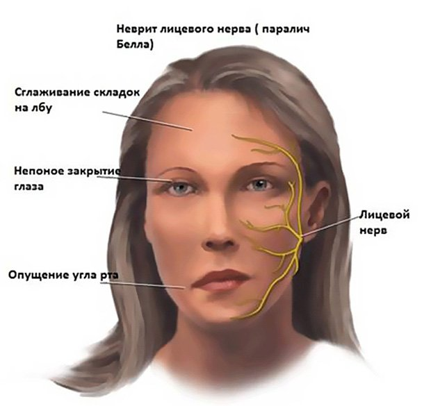проявления болезни