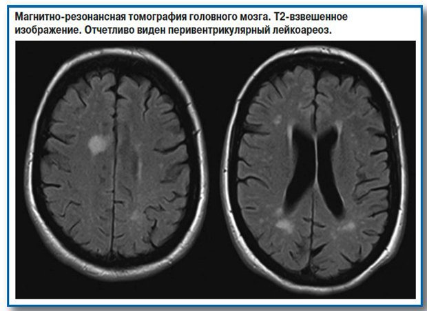 Многоочаговые поражения головного мозга сосудистого генеза