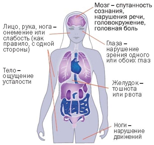 Зоны поражения при инсульте