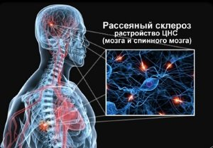 Схема поражения нервов