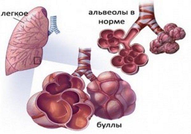 Расширенные альвеолы