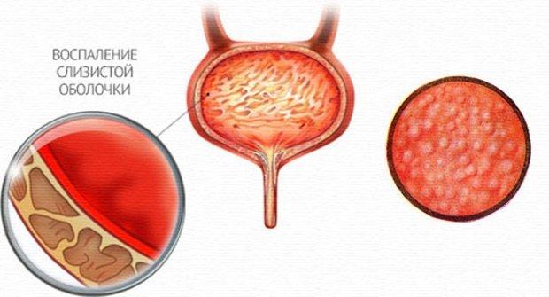 Воспаление слизистой оболочки