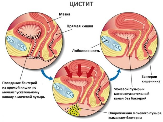 расположение органов малого таза