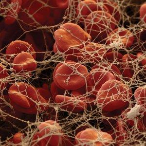 дезагрегационная тромбоцитопатия
