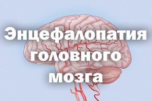 Энцефалопатия головного мозга у пожилых