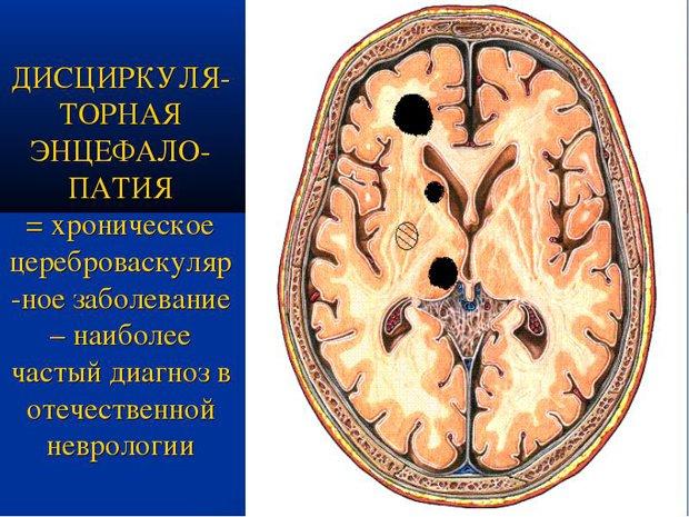 Энцефалопатия головного мозга последствия у взрослых