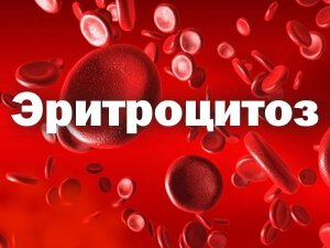 Эритроцитоз