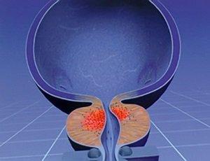 Лечение доброкачественной гипертрофии предстательной железы