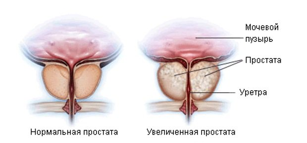 схема увеличения органа