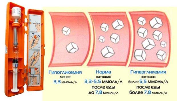 Уровни глюкозы крови